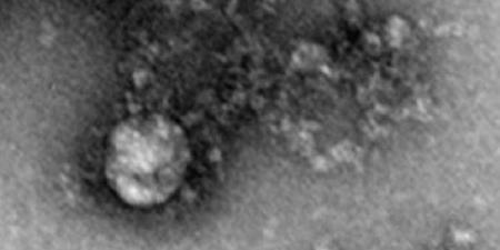 شاهد أول صورة للطفرة البريطانية القاتلة من فيروس كورونا